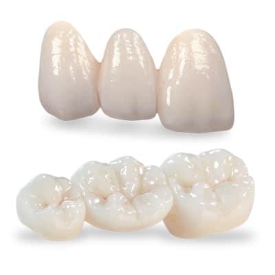 Răng sứ DDBIO