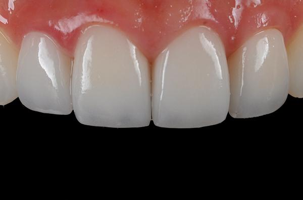 Răng sứ Katana
