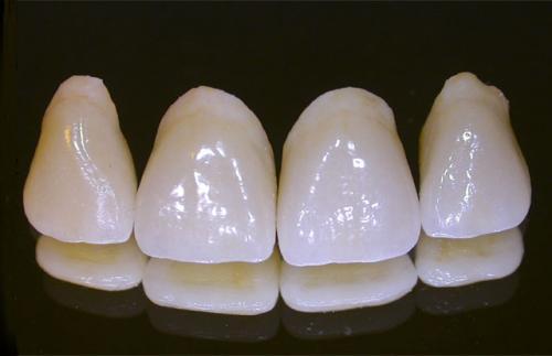 Răng sứ Roland